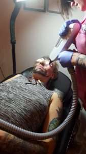 laser tattoo removal, tattoo removal in keighley, keighley, skipton, bradford, tattoo removal